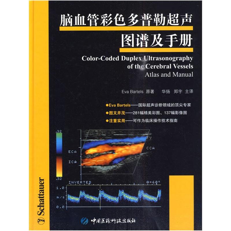 《脑血管彩色多普勒超声图谱及手册》(德)巴特尔斯